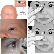 الدموع عند حديثي الولادة