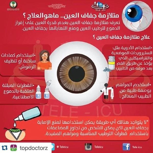 علاج جفاف العين وأسباب حدوثه