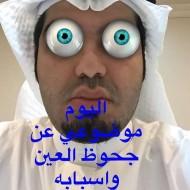 موضوعي اليوم عن اسباب جحوظ العين و تأثيره على العين بسناب شات #snapchat dr.albaraa