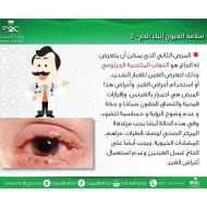 سلامة العين اثناء #الحج وهذه تعتبر اغلب الأمراض التي يعاني منها الحجاج في الحج وفي كل الحالات اي طارئ في العين يستوجب زيارة طبيب العيون في المراكز الصحية المنتشرة في المشاعر المقدسة