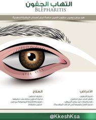 إلتهاب الجفون من المشاكل الشائعة بالعين والتي تحتاج الى علاج و متابعة مستمرة #صحة_عينك #ليزك #البراء_القاسمي